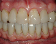 Hybrid Mandibular Bridge Premium